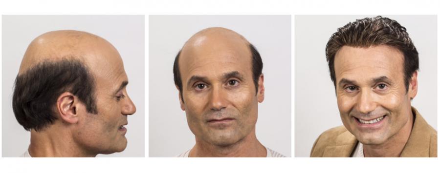 type de prothèse cheveux 1