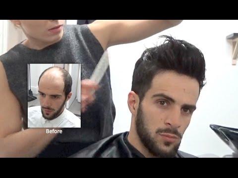 perruque homme avant apres