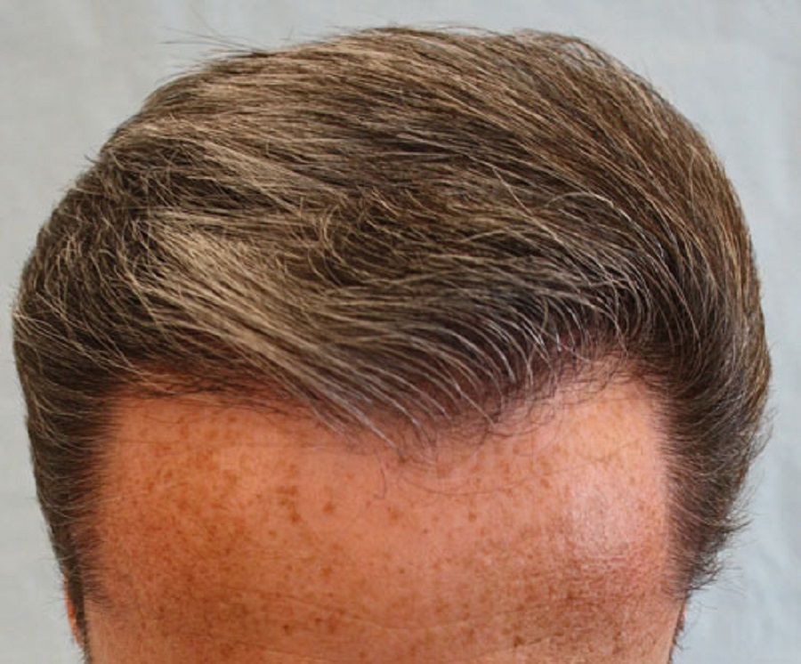 cheveux homme