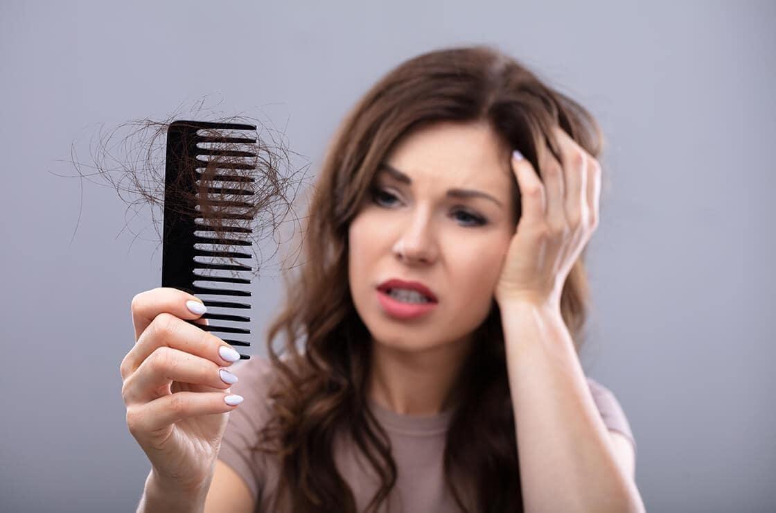 crise perte cheveux